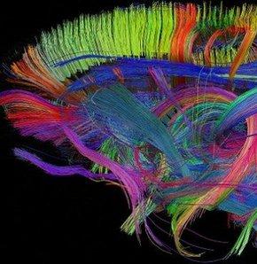Beynimizin gerçek yüzü ortaya çıktı!