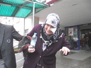 Alevli Hortum, Yaşlı Kadının Yüzünü Yaktı