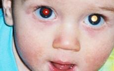Fotoğrafta 'kırmızı göz' neyin göstergesi